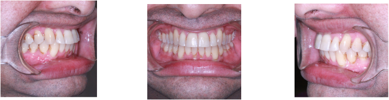 Tooth Crowding Before & After Treatment | Sally A  Gupton, DDS